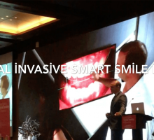 Minimal İnvasive Smart Smile Design