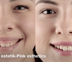 Pink Esthetic